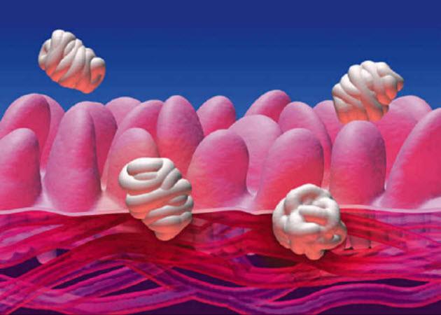 The Reversal Of Rheumatoid Arthritis Leaky Gut Syndrome