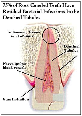 Dentinal Tubule