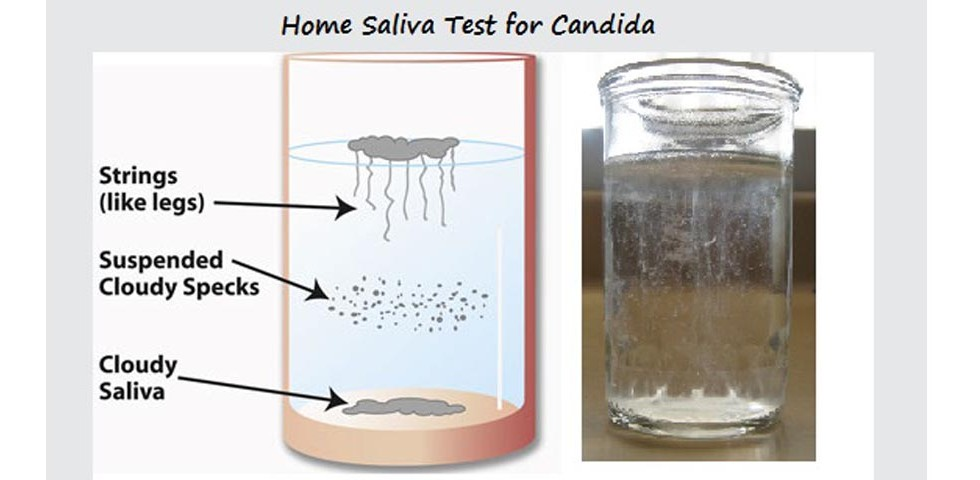 Saliva-Home-Test-slider